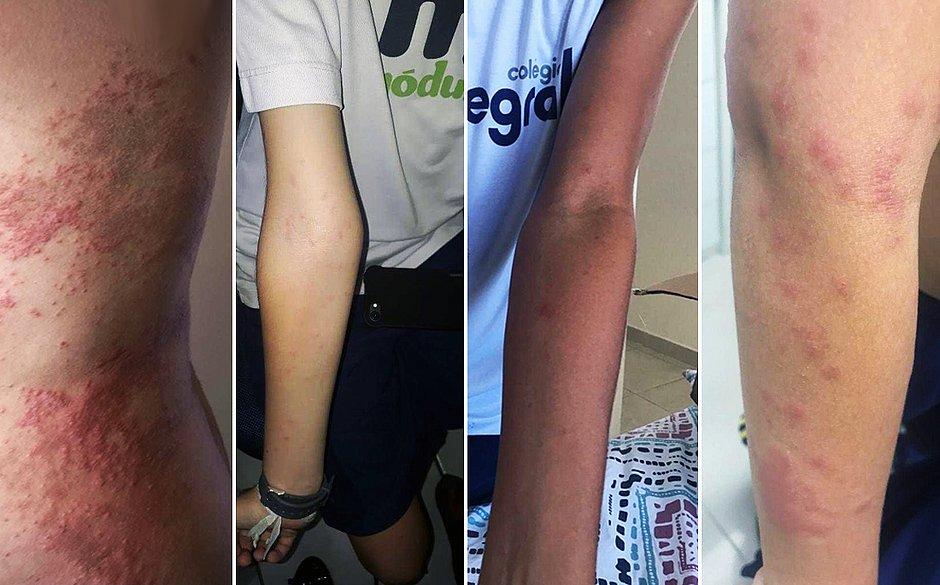 Secretaria Municipal de Saúde ainda investiga dermatose em moradores de Patamares